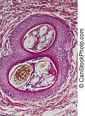 Human Tissue - Scar tissue of skin, Section of pathological ...