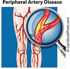 Human with Peripheral Artery Disease illustration