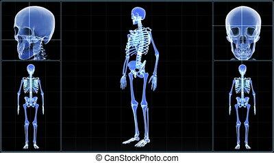 Human X-ray scanning. Medical monitor.