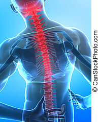 Human x-ray spine - Man with pain in backbone with visible...