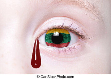 human's eye with national flag of lithuania with bloody tears.