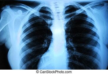 humano, body\'s, radiografía