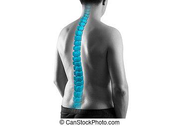 humano, quiropráctico, espina dorsal, tratamiento, escoliosis, concepto, fondo blanco, aislado, ciática