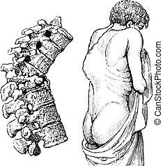 Hump of the vertebral disease or Pott's disease, vintage engravi