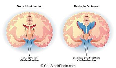 Huntington's disease - medical illustration of the symptoms...