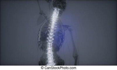 Hurt Spine. Male Backbone. Backache, Headache - Vertebrae...