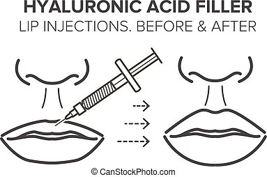 Hyaluronic acid filler. Lip injections. Before and after. Vector illustration