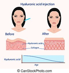 hyaluronic acid injection, before and affect , vector...