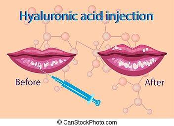 hyaluronic acid injection,lips procedure vector...
