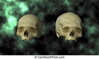 Hydrocephalic Skull, Top 24P - 3D scan of actual human...