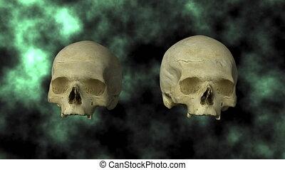 Hydrocephalic Skull, Top 30P - 3D scan of actual human...