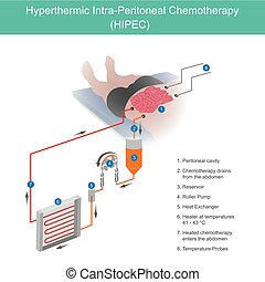 Hyperthermic Intra Peritoneal Chemotherapy. The use of chemotherapy to destroy intestine cancer cells through fluid in the abdomen at higher temperatures to allow the drug to touch cancer cells in the treatment easier.