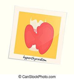 Hyperthyroid gland in a photo frame