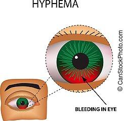 Hyphema. Anterior eye hemorrhage. The structure of the eye. ...