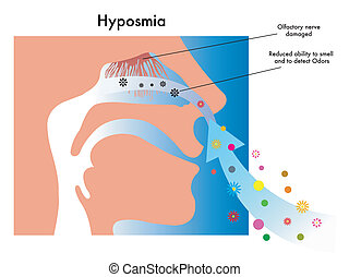 hyposmia - symbolic medical illustration of symptoms of...