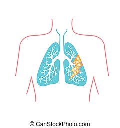 icon of lung disease
