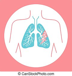 icon of lung disease hit