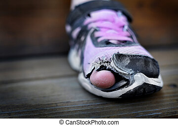il portare, attacco, loro, dita piede, vecchio, scarpe, fori, portato, senzatetto, bambino, fuori