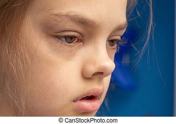 Ill child, conjunctivitis on the eyes