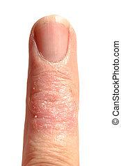 Ill Dematitis Allergic Skin Rash Eczema Finger