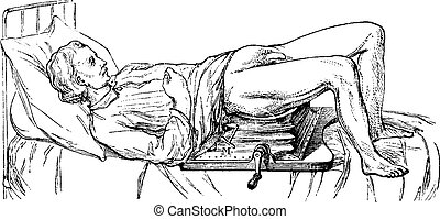 illustration., 辞書, 1885., 型, -, lithotripsy, labarthe, 装置, 薬...