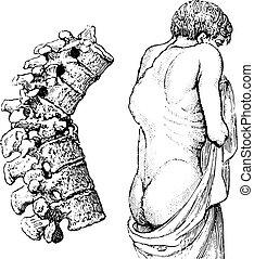 illustration., 辞書, labarthe, 型, こぶ, pott's, -, 病気, vertebral, 1885., 刻まれる, 薬, 病気, dr, ∥あるいは∥, 普通