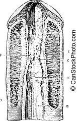 illustration., 辞書, labarthe, 型, blennorrhagias, -, 1885., 制限, 刻まれる, 薬, consecutive, いくつか, dr, 尿道, 普通