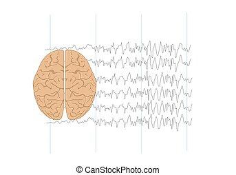 illustration, anormal, vagues cerveau