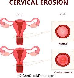 illustration, cervical, erosion, schematisk