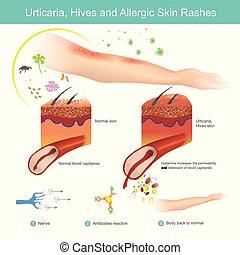 illustration., colmenas, rashes., piel, urticaria, alérgico