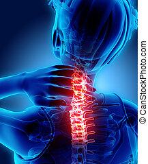 illustration., -, cuello, espina dorsal cervical, radiografía, doloroso, esqueleto, 3d