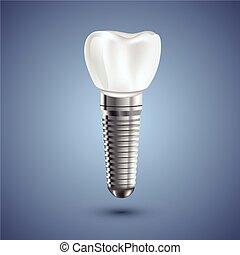 illustration., dental, realista, anatomía, implante