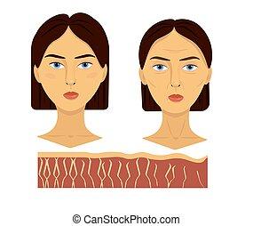 illustration, deux, vieilli, fibre, vecteur, collagène, comparaison, figure, peau, épiderme, jeune, femme