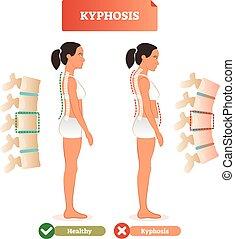 illustration., diagnóstico, vector, defecto, contra, espalda, kyphosis, espina dorsal, healthy.