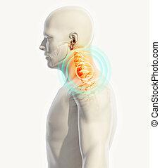 illustration., dos, cou, -, cervica, rayon x, squelette, douloureux, 3d