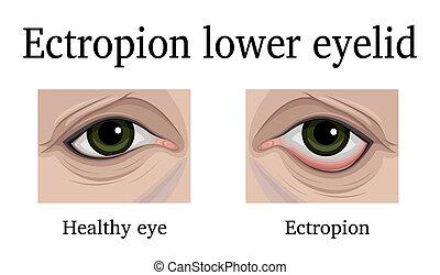 Ectropion of the lower eyelid - Illustration Ectropion of...