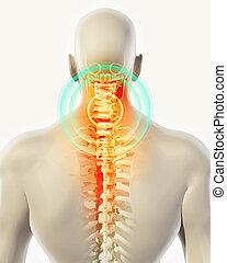 illustration., espina dorsal, cuello, -, cervica, radiografía, esqueleto, doloroso, 3d