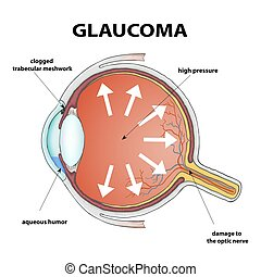 illustration., glaucoma., estoque
