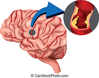 Blood Clot concept in the brain - Illustration of a Blood...