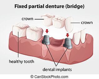 Fixed partial denture bridge - Illustration of a Fixed...