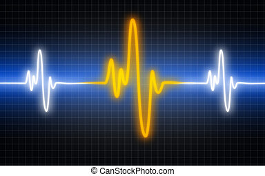 Illustration of a heart machine display