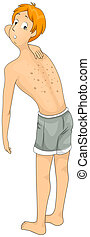 Skin Allergy - Illustration of a Man Checking His Skin...