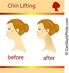 Illustration of a woman with a double chin and a normal chin, vector illustration