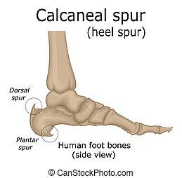Illustration of Calcaneal spur - Illustration of the heel ...
