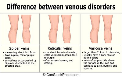 Illustration of difference between venous disorders, such as spider veins, reticular veins and varicose veins.