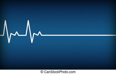 EKG - illustration of EKG trace on blue background