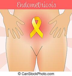 Endometriosis in woman