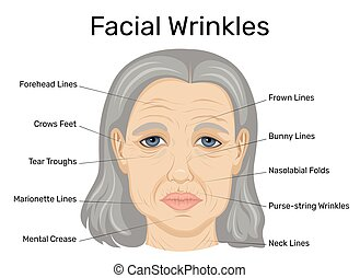 Illustration of facial wrinkles