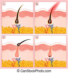 illustration of hair removal