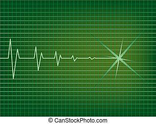 EKG - Illustration of Heart is slowing down on EKG monitor